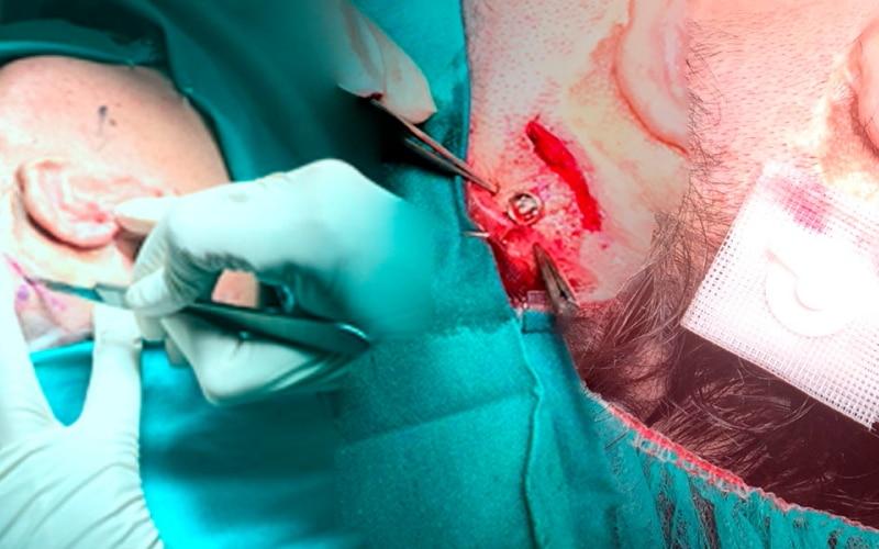 El Hospital Universitario del Sureste implanta una prótesis de titanio en el cráneo a un paciente con problemas de audición