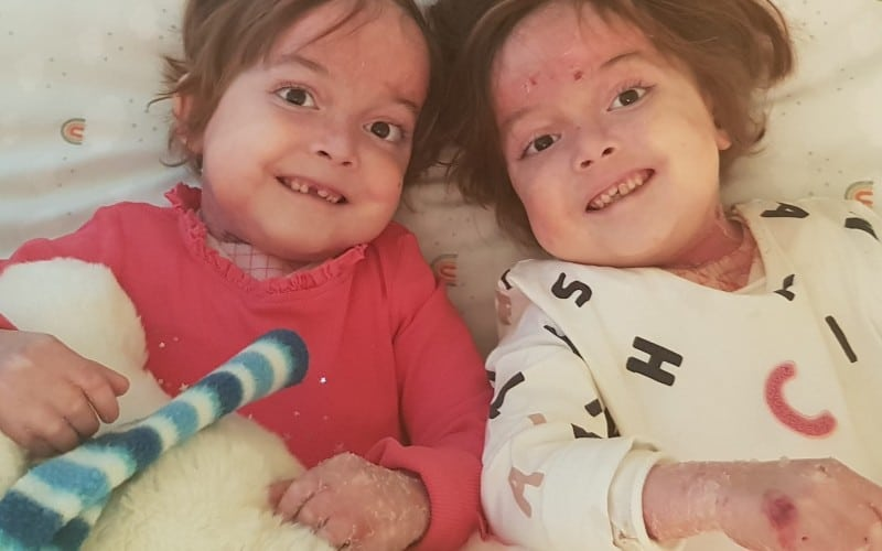 Noa y Carla, gemelas ripenses que padecen piel de mariposa